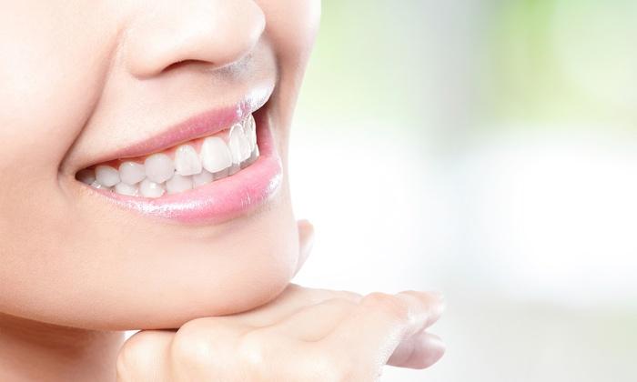 Takto vybielené zuby vám bude vaše okolie určite závidieť